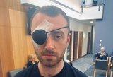 Samas Smithas atsidūrė ant operacinės stalo: prisipažino bijantis