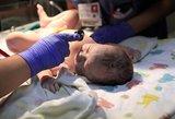 Gimus girtam kūdikiui – diskusija apie negimusių vaikų apsaugą