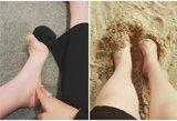 Po apsilankymo SPA amputuoti penki kojos pirštai: medikai manė, kad išsigalvoja