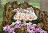 Šie kūdikiai ypatingi – tokie gimsta kartą iš 15 milijonų