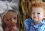 Mama kasdien fotografuoja dukrą: neįprasta raudonplaukė išgyveno tik per stebuklą