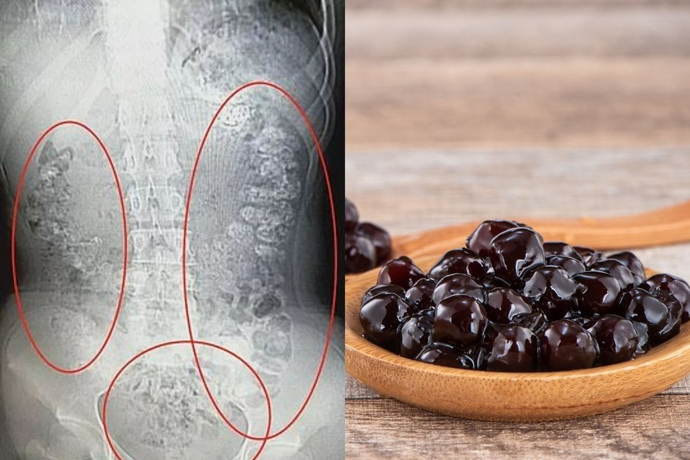 """Per daug populiaraus azijietiško gėrimo, vadinamo """"burbuline arbata"""" išgėrusios paauglės kūne įstrigo daugiau nei 100 tapijokos perlų (tv3.lt fotomontažas)"""