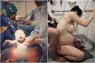 Po gimdymo įsiamžino visiškai nuoga: šokiruojantys kadrai
