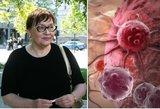 Maldeikienei smogęs vėžys prasideda šiais požymiais: uždelsus bus vėlu