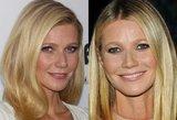 Kalėdoms – naujas veidas? Gwyneth Paltrow veide akimirksniu dingo raukšlės