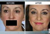 Geidė Angelinos Jolie lūpų, bet po procedūros jų suglausti negalėjo net 10 metų