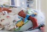 Vokietijoje – tėvų nerimas: vaikai gimsta su vystymosi sutrikimais