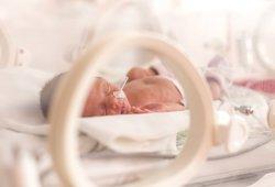 Kaune gimė mažiausia mergytė Lietuvoje: svėrė 350 gramų