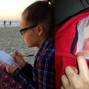 Ramunėlės kūnas nusėtas negyjančiomis žaizdomis: šeima tiki stebuklu