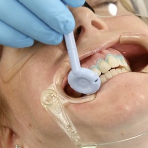 Gydytoja sukritikavo balinančias dantų pastas: tai – mitas
