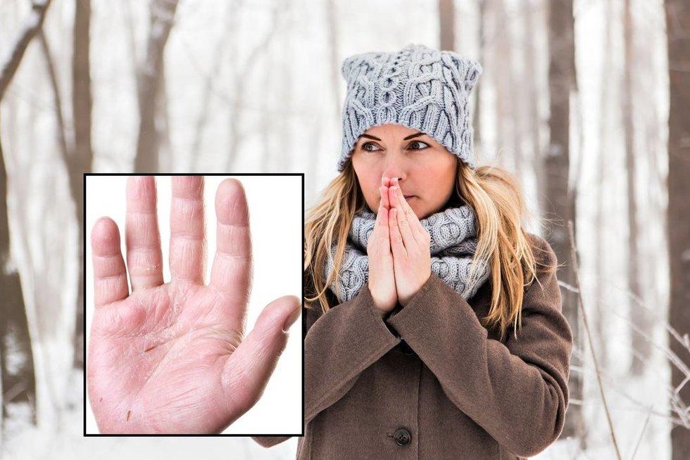 Sausos rankos šaltuoju laikotarpiu (nuotr. 123rf.com)
