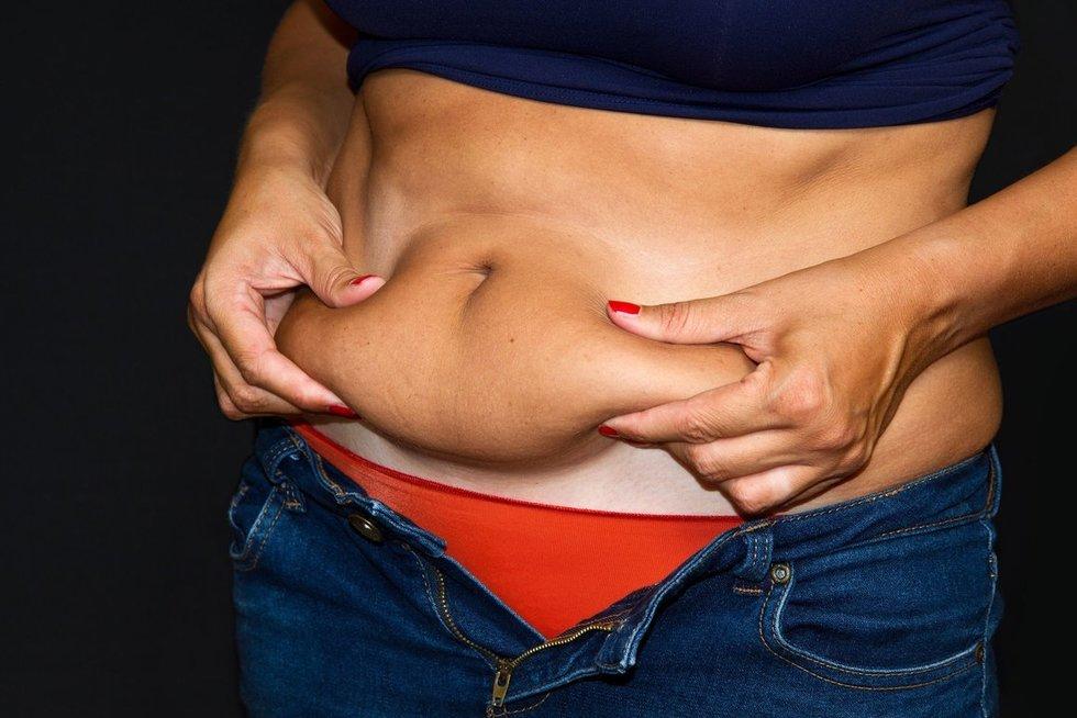 Pilvo riebalai tirps savaime (nuotr. 123rf.com)