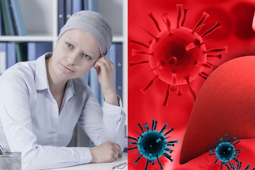 Vėžį atskleisti gali iš pažiūros nekalti simptomai (nuotr. 123rf.com)