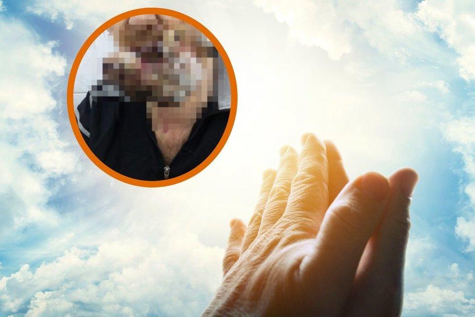 Vietoje operacijos – malda: tiek apleido vėžį, kad teko šalinti pusę veido (nuotr. 123rf.com)