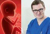 Ginekologas atvirai apie abortus: kodėl mūsų šalyje moterys renkasi nutraukti nėštumą