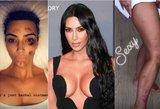 Kim Kardashian kenčia nuo žvynelinės: žaizdos nusėjo kūną