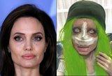 Jolie antrininkė šokiruoja: vėl gulėsi po skalpeliu