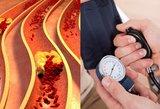 Kraujospūdį sumažinsite per 10 minučių: neprireiks vaistų