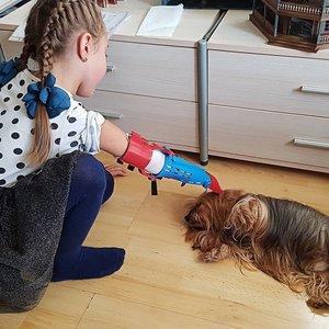 Vilnietis, 3D spausdintuvu sukūręs mergaitei dirbtinę ranką, siūlo savanorišką pagalbą