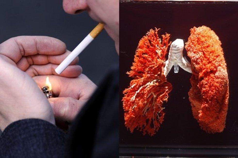 Plaučių ligos – dažniausia rūkymo pasekmė (nuotr. SCANPIX) tv3.lt fotomontažas