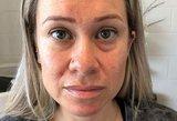 Nuvargusios moters pokyčiai – stulbina: vos per kelias sekundes atsikratė tamsių paakių