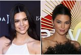 Pasikeitusi Kendall Jenner gąsdina gerbėjus: kas nutiko jos veidui?