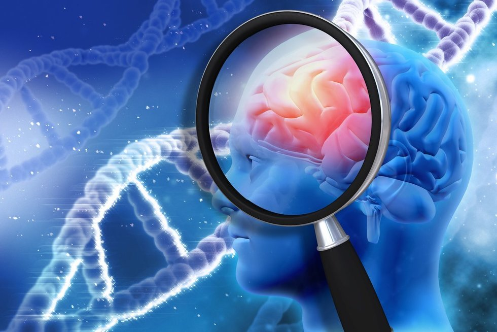 Alzheimeris  (nuotr. 123rf.com)