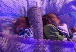 Šie klaipėdietės dvynukai vadinami stebuklu: medikai nesulaiko emocijų