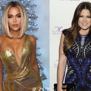 30 kg atsikračiusi Kardashian atvira: tai pakeitė mano gyvenimą