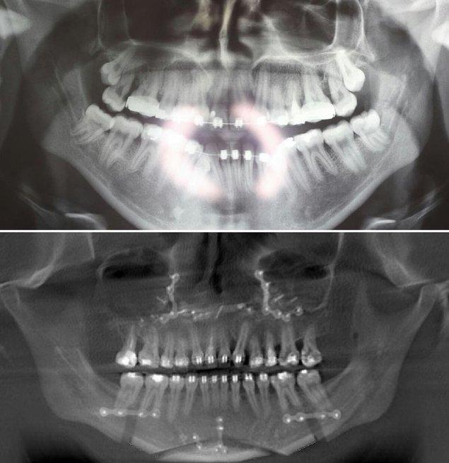 Rentgenas prieš ir po žandikaulių operaciją