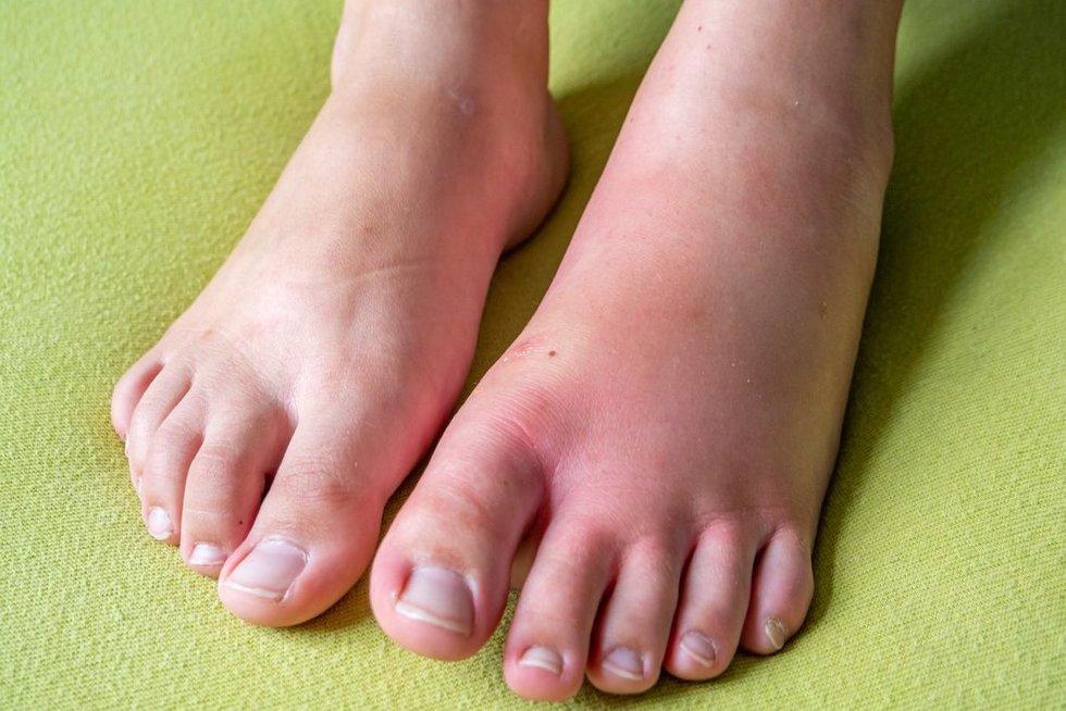 Ištinusios kojos (nuotr. 123rf.com)