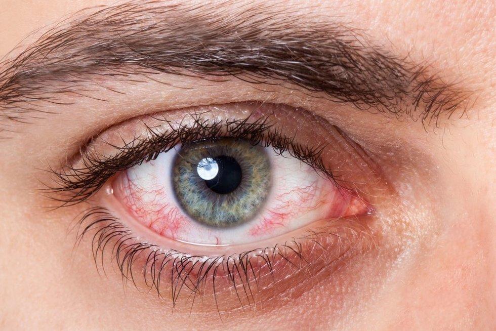 Paraudusi akis (nuotr. 123rf.com)