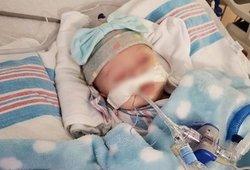 2-iejų mėnesių mergytė kovoja su koronavirusu: pradžioje palaikė paprastu peršalimu