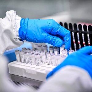 Koronavirusas toliau plinta – Lietuvoje serga jau 394