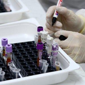 Kova su koronavirusu: Lietuvoje atlikta 2086 tyrimų