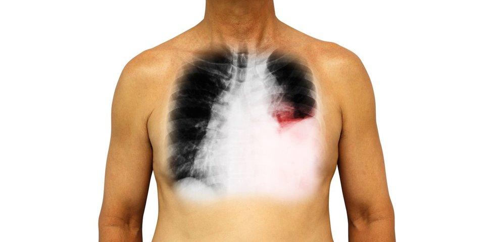 Geros naujienos rūkaliams: plaučiai geba atsigauti, tereikia tik vieno