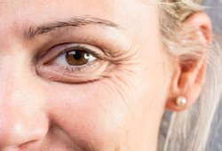 Ant veido užtepkite šio maisto produkto: padės sumažinti raukšlių kiekį