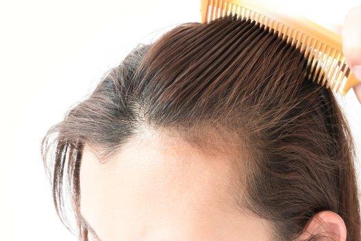 Riebūs plaukai (nuotr. 123rf.com)