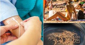Vasarą saugokitės kirmėlinių ligų (tv3.lt fotomontažas)