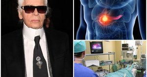 Lagerfeldą pakirto sunki liga (tv3.lt fotomontažas)