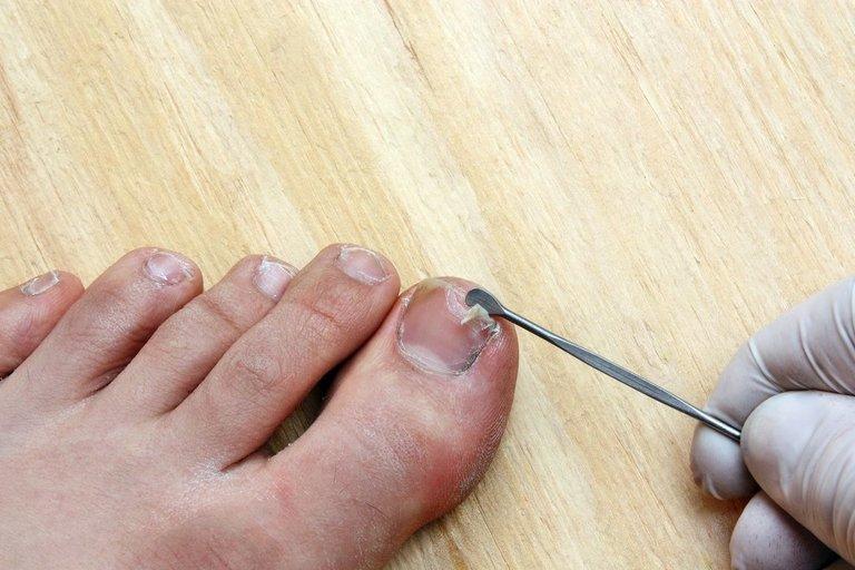 Grybelio gydymas (nuotr. 123rf.com)