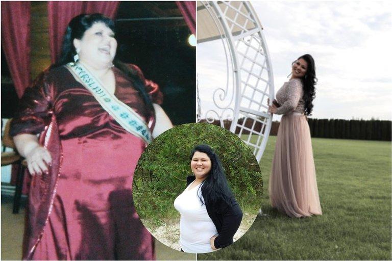 Edita atsikratė 100 kilogramų ir dabar savo pavyzdžiu įkvepia kitas (nuotr. asm. archyvo)