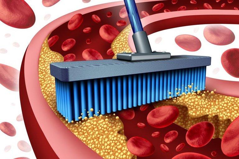 Cholesterolio valymas (nuotr. 123rf.com)