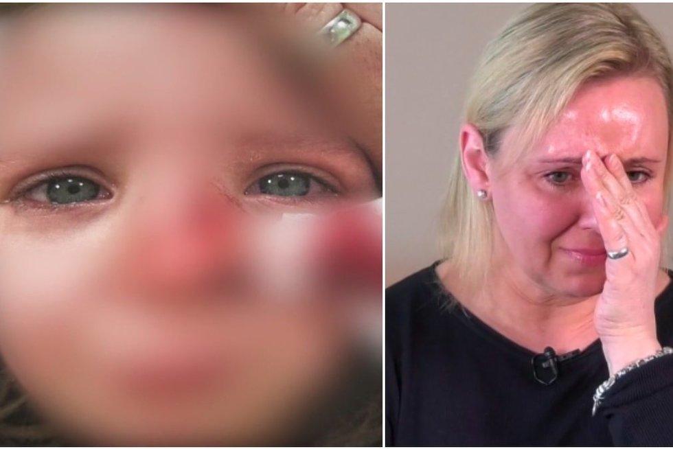 Nelaimė Klaipėdos darželyje subjaurojo mergytės veidą: vadovybės žodžiai pribloškė mamą