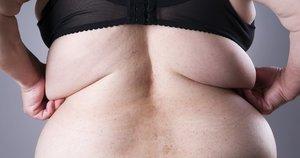 Nutukimas (nuotr. 123rf.com)