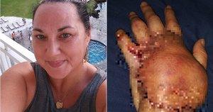Moteriai popieriaus įpjovimas vos nesibaigė mirtimi  (nuotr. facebook.com)