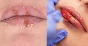 Lūpų permanentinis makiažas (tv3.lt fotomontažas)