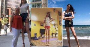 Ilgiausių kojų savininkė pasaulyje Rentsenkhorloo Budo prikausto praeivių žvilgsnius (nuotr. Instagram)