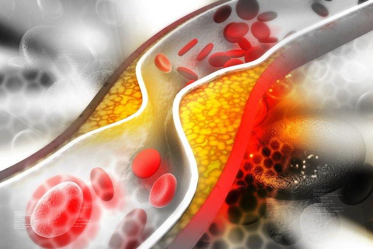 Cholesterolis (nuotr. 123rf.com)
