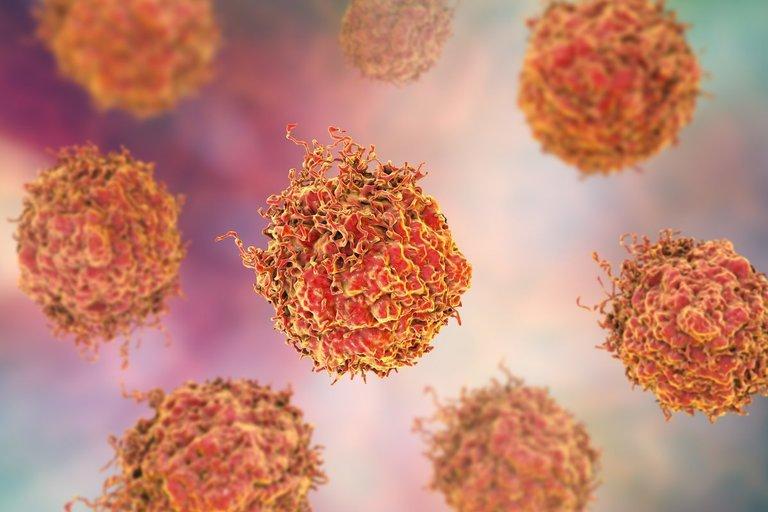 Prostatos vėžys (nuotr. 123rf.com)